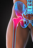Painful Hip Joint. Illustration. 3D render Stock Image