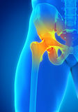 Painful Hip Joint. Illustration. 3D render Stock Photos