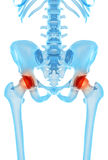 Painful hip joint Stock Photography