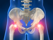Painful hips Stock Images