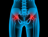Painful joints x-ray Royalty Free Stock Photos