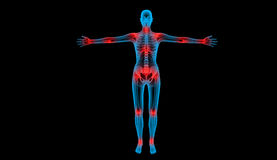 Painful joints x-ray body Stock Photo