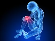 Painful knee Royalty Free Stock Images