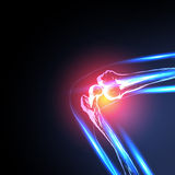 Painful Knee. Close-up, easy all Royalty Free Stock Photo