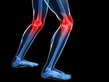 Painful knee illustration Stock Photography