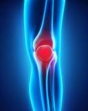 Painful Knee Illustration Stock Photos