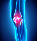 Painful Knee Illustration Royalty Free Stock Photos