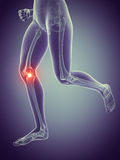 Painful knee joint Stock Photography