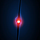 Painful Knee or leg X-ray Stock Photo