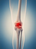 The painful knee Royalty Free Stock Photos