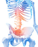 Painful lumbar spine Royalty Free Stock Photo