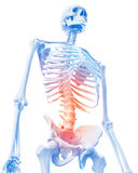 Painful lumbar spine Stock Photos