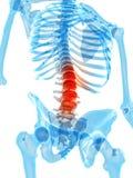Painful lumbar spine Stock Photo
