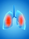 A painful lung. 3d rendered illustration of a painful lung Stock Image