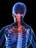 Painful neck. 3d rendered x-ray illustration of a human skeleton with painful neck Royalty Free Stock Photography