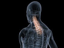 Painful neck Stock Image