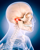 The painful neck. Medically accurate 3d illustration of the painful neck Stock Photos