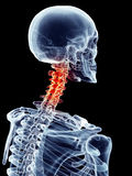 Painful neck. Medically accurate illustration - painful neck Royalty Free Stock Photography