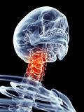Painful neck Stock Photo