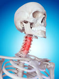 Painful neck Royalty Free Stock Image