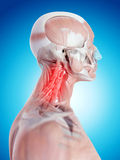 Painful neck Royalty Free Stock Photography
