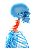 Painful neck. Medically accurate illustration - painful neck Royalty Free Stock Photos