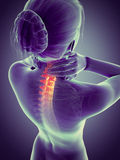 Painful neck - visible spine Stock Image