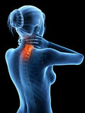 Painful neck. Woman having a painful neck - visible spine Royalty Free Stock Photo