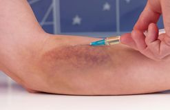 Painful. Nurse gives an injection to the patient with big awful bruise on the hand stock image