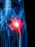 Painful sciatic nerve Stock Photo