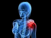Painful shoulder. 3d rendered illustration of a transparent woman with highlighted shoulder Stock Image