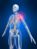Painful shoulder. 3d rendered x-ray illustration of a human skeleton with a painful shoulder Royalty Free Stock Image