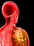 Painful shoulder Stock Photos