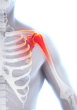 Painful Shoulder Illustration. 3D render Stock Photo