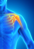 Painful Shoulder Illustration Stock Images