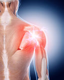 Painful shoulder. Medical 3d illustration of a painful shoulder Royalty Free Stock Photo