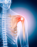 Painful shoulder. Medically accurate 3d illustration of painful shoulder Royalty Free Stock Photography