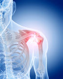 Painful shoulder Royalty Free Stock Images
