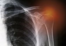 Painful shoulder. X-rays image of painful shoulder royalty free stock image