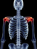 Painful shoulders. Medically accurate illustration - painful shoulders Stock Photography