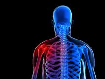 Painful skeletal shoulder Royalty Free Stock Photo