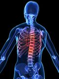 Painful spine Stock Photo