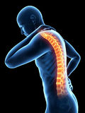 Painful spine Stock Image