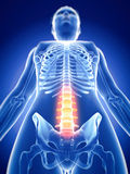 The painful spine. Medically accurate 3d illustration of the painful spine Royalty Free Stock Image