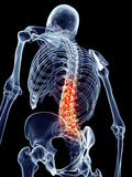 Painful spine Royalty Free Stock Photography