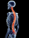 Painful spine Royalty Free Stock Photos