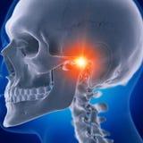 A painful temporomandibular joint royalty free stock photo