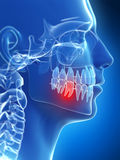Painful tooth. 3d rendered illustration of a painful tooth Royalty Free Stock Images