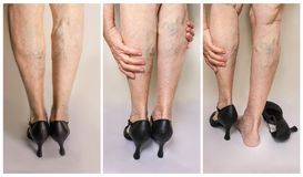 Painful varicose and spider veins on female legs.Woman in heels massaging tired legs. Painful varicose and spider veins on female legs. The senior woman in heels royalty free stock images