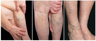 Painful varicose veins,,spider veins, varices on a severely affected leg. Ageing, old age disease, aesthetic problem. Painful varicose veins,,spider veins Stock Photos
